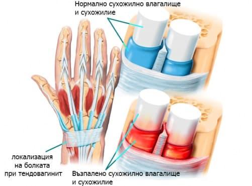 Синовит/теносиновит/тендовагинит/тендинит