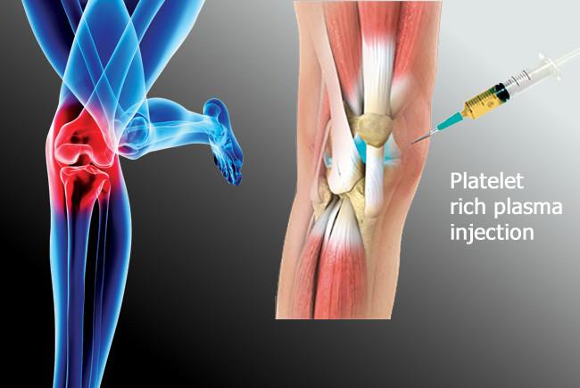 P.R.P. терапия – Плазмотерапия – тромбоцитно обогатена терапия